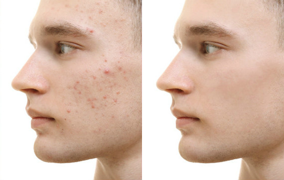 Elevate Aesthetics and Wellness Cedar Falls Iowa Before After Chemical Peels for Acne