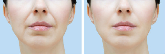Elevate Aesthetics and Wellness Cedar Falls Iowa Before After Filler Injection Nasolabial Folds
