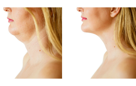 Elevate Aesthetics and Wellness Cedar Falls Iowa Before After Kybella injections