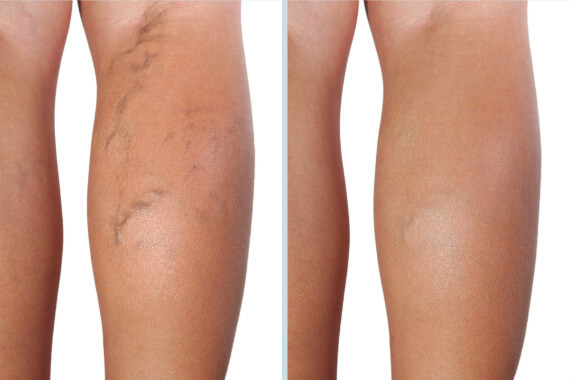 Elevate Aesthetics and Wellness Cedar Falls Iowa Before After sclerotherapy